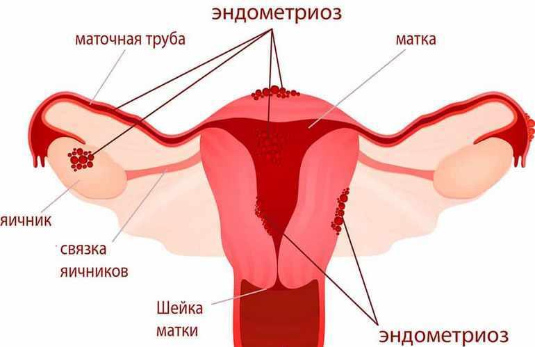 эндометриоз матки и маточных труб