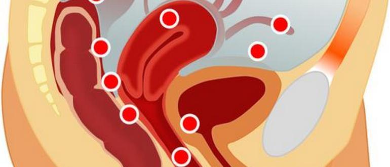 можно ли вылечить эндометриоз