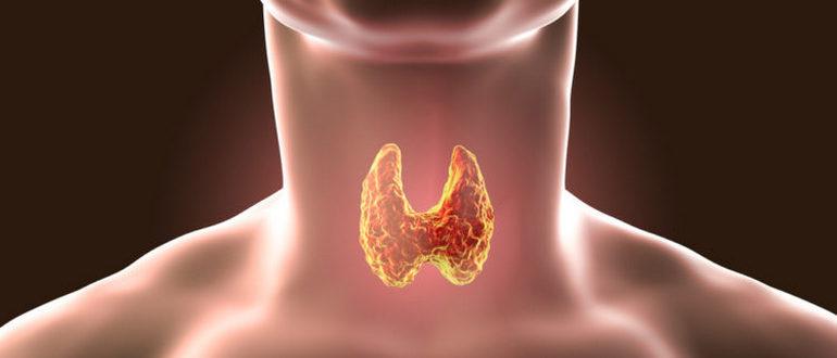 щитовидная железа и эндометриоз