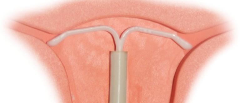 внутриматочная спираль и менструации