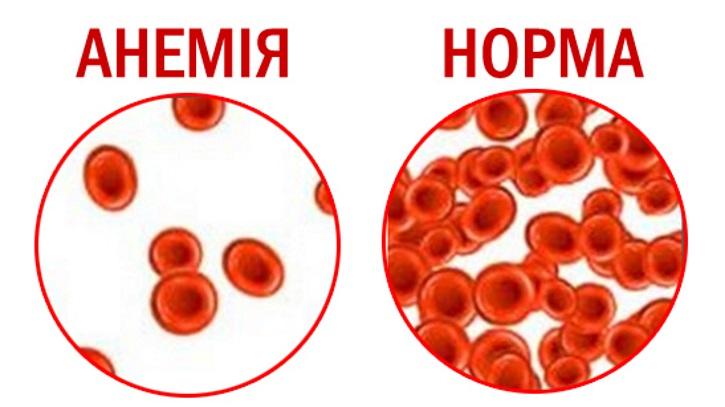 Железодефицитная анемия при полипе в матке