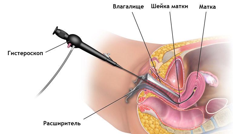 Гистероскопия при полипах в матке