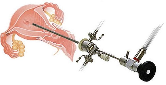 Гистероскоп для удаления полипов эндометрия