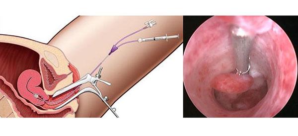 Гистерорезектоскопия полипа матки
