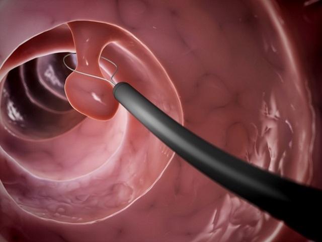 Дитермокоагуляция полипа в матке