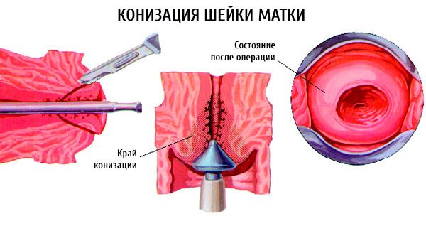 Процесс конизации шейки матки