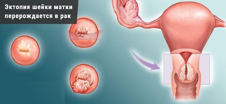 Эктопия может перерождаться в рак