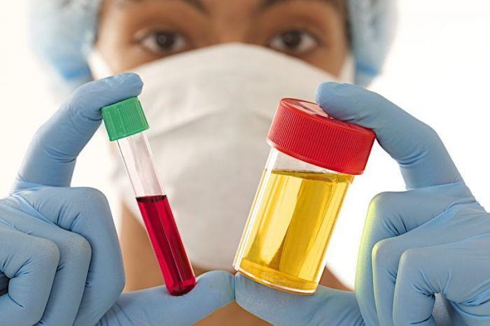 Клинические анализы мочи и крови