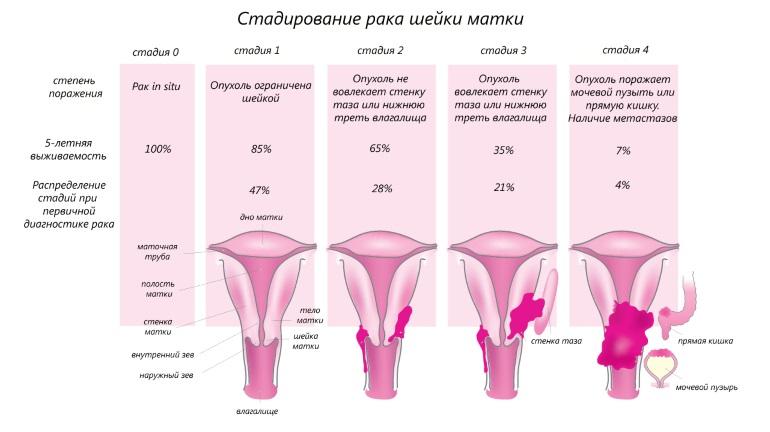 Стадии развития рака шейки матки