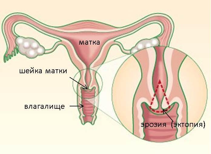 Эрозия при беременности