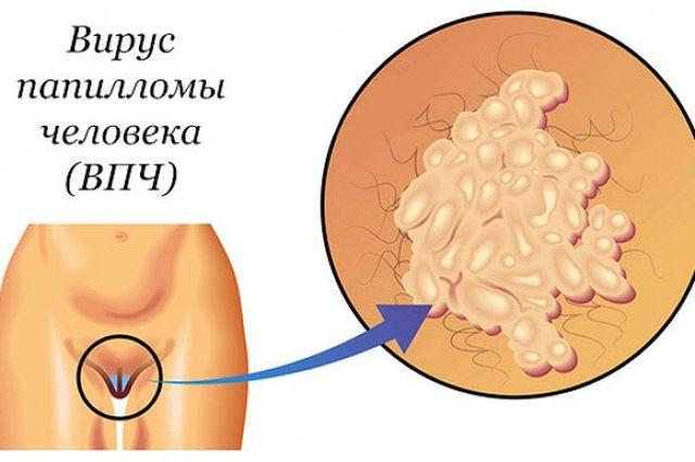 ВПЧ 16 при раке шейки матки