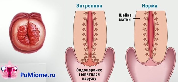 Эктропион