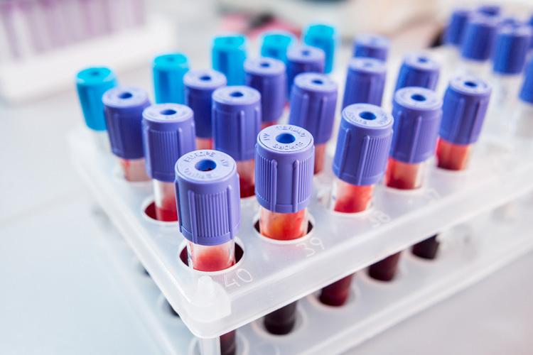 Анализ крови при эктропионе