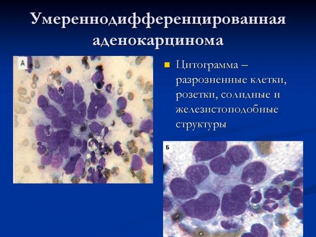 Как выглядит аденокарцинома матки