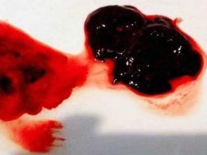 Причины появления месячных со сгустками